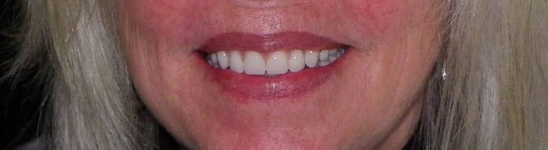 dentures-after-smile-crop