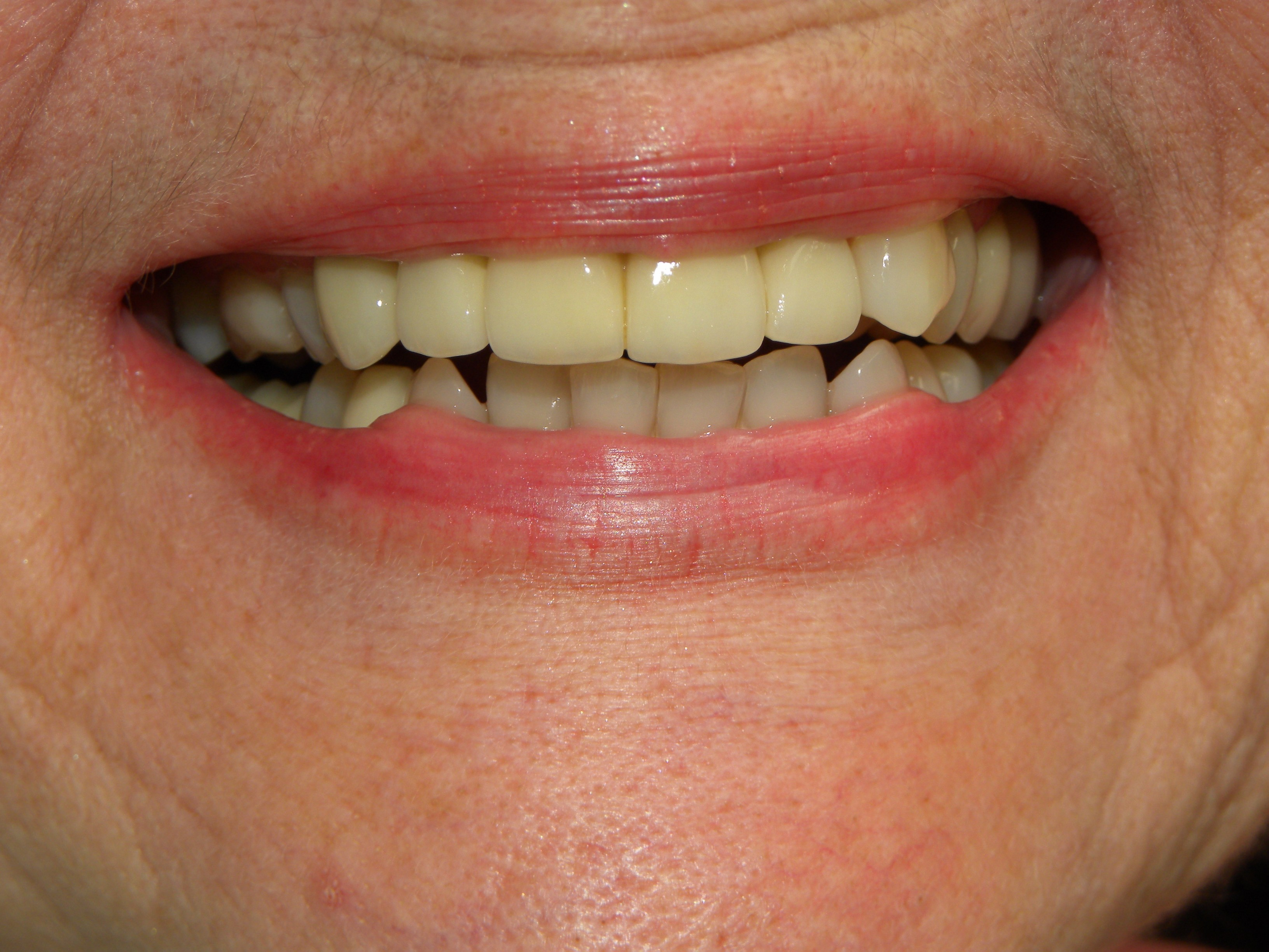 A Bridge Can Replace Missing Teeth Dr Dove Dental